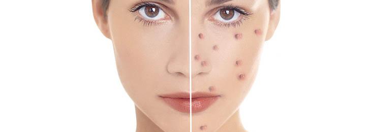 otzyv-o-dermatologii